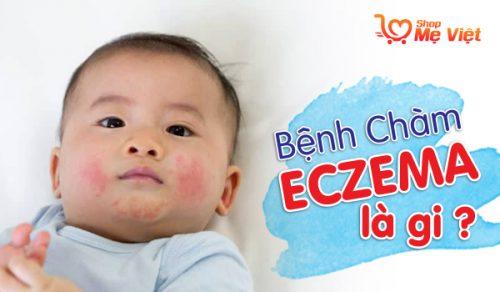 Bệnh Chàm Eczema Là Gì – Cách Nhận Biết Và Điều Trị Eczema